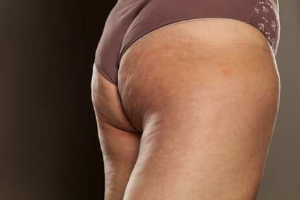 obese female buttocks with cellulite and stretch marks